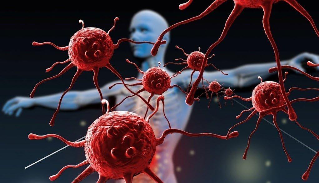 Enfermedad Autoinmune Desencadenante