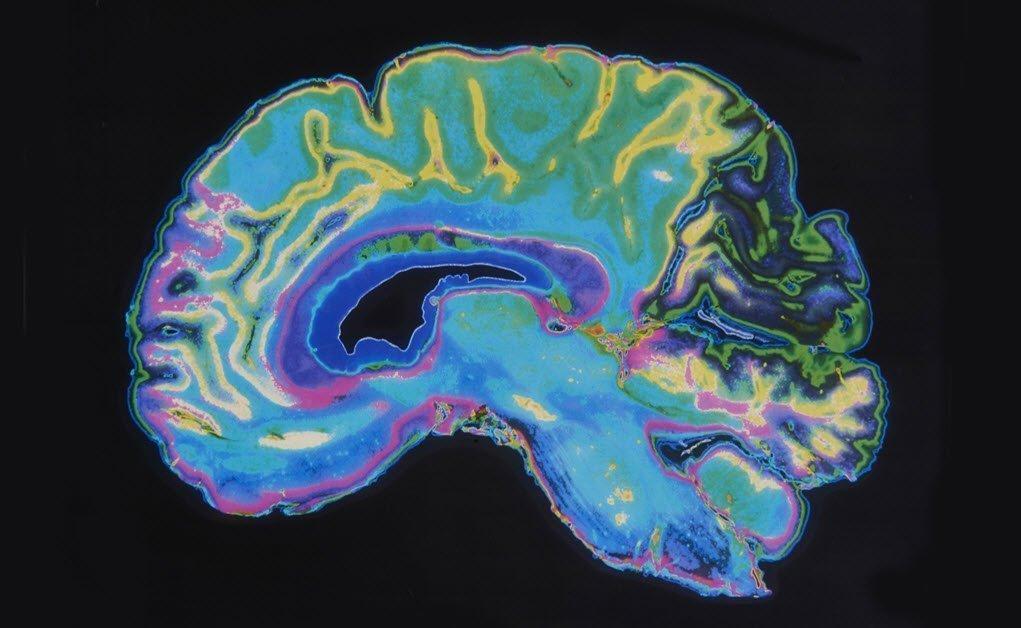 Cerebro Sigue Creciendo En Adultos