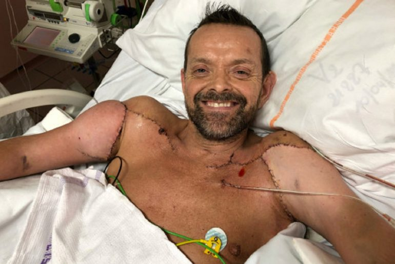 Felix Gretarsson, el primer hombre en recibir un trasplante de hombros y brazos.