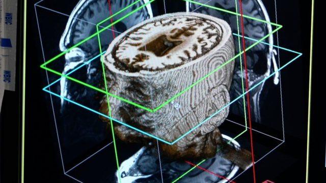 Escáner del cerebro humano